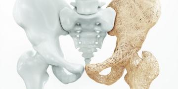 Desatero osteoporózy